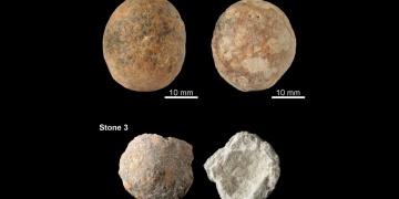 12 bin yıllık prostat taşları bulundu