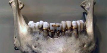 İnsanlığın yaşam biçimleri dişlerinden okunabiliyor