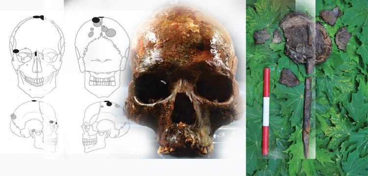 Kazığa geçirilmiş Taş Devri kafatasları gizemli bir ayini gösteriyor