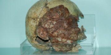 Niğde Müzesinde 13 tane 7.500 yıllık kil sıvalı insan kafatası var