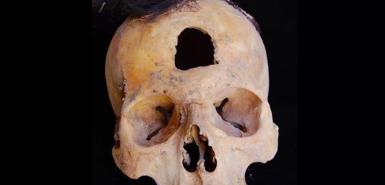 Peru'da kazıklara geçirilmiş kafataslarının gizemi araştırılıyor