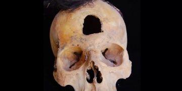 Peruda kazıklara geçirilmiş kafataslarının gizemi araştırılıyor