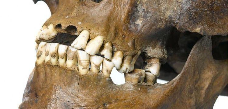 İnsan cinsiyeti pelvise gerek kalmadan diş üzerinden belirlenebilecek