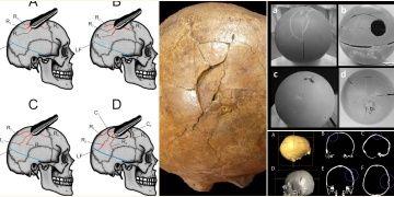 Romanyada 33 bin önceydi, katil solaktı ve sert bir cisim kullanıyordu
