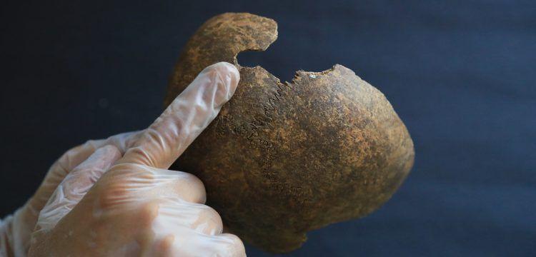 Milas'ta 2200 yıl önce beyin ameliyatı yapıldığı anlaşılıyor