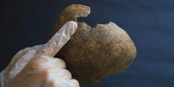 Milasta 2200 yıl önce beyin ameliyatı yapıldığı anlaşılıyor