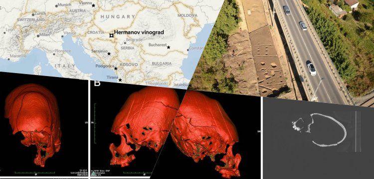 Uzun kafatasları ile Roma İmparatorluğu'nun çöküşü arasında bağ arandı