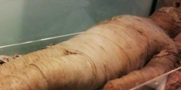 Sağlık kontrolüne giren mumyalar yüksek kolesterollü çıktı