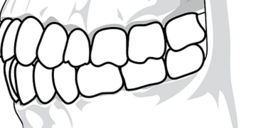 How scars on hominins tooth surface are formed?